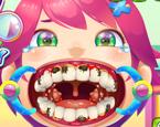 Ağız ve Diş Temizleme