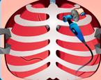 Akciğer Ameliyatı